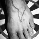 Cuando la ruta penetra la piel…